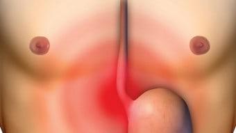 Acidità e bruciore di stomaco: rimedi naturali