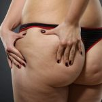 Cellulite: rimedi naturali