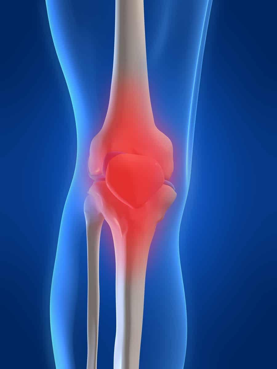 Dolori articolari rimedi naturali efficaci contro i for Dolori articolari cause