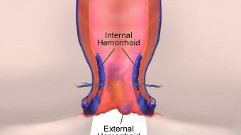 Emorroidi: rimedi naturali