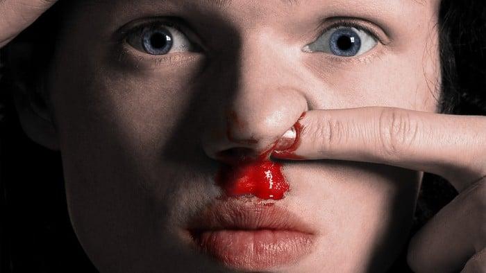 epistassi sangue naso