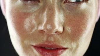 Pelle grassa: rimedi naturali