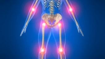 Reumatismi: rimedi naturali