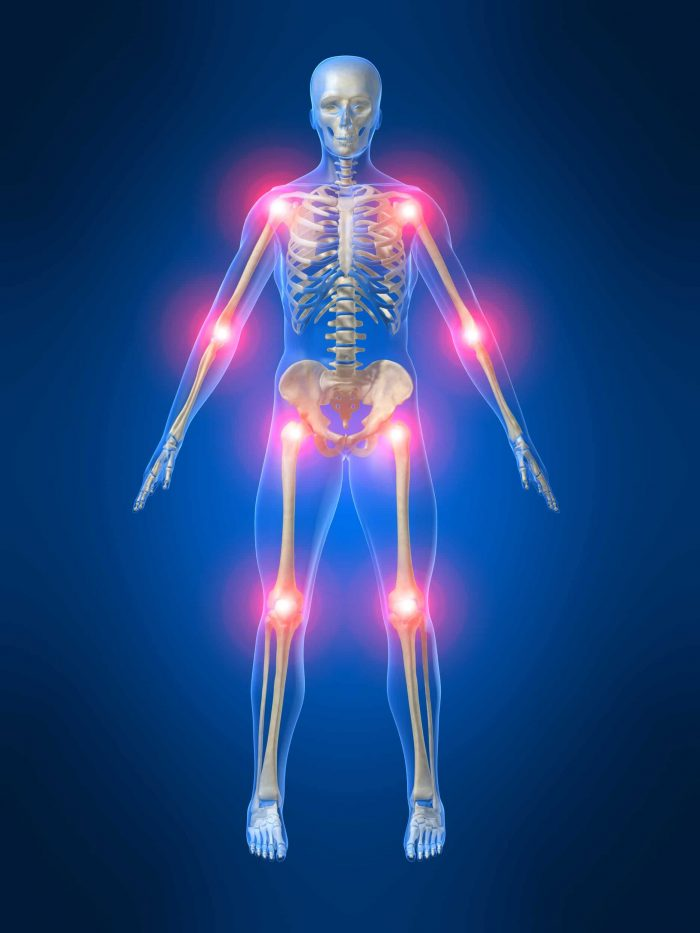 Reumatismi sintomi cause e rimedi naturali contro i for Dolori articolari cause