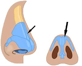 rhino correct rinoplastica